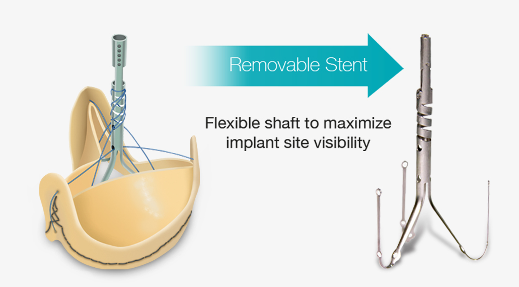 FULLY-REMOVABLE-STENT.jpg